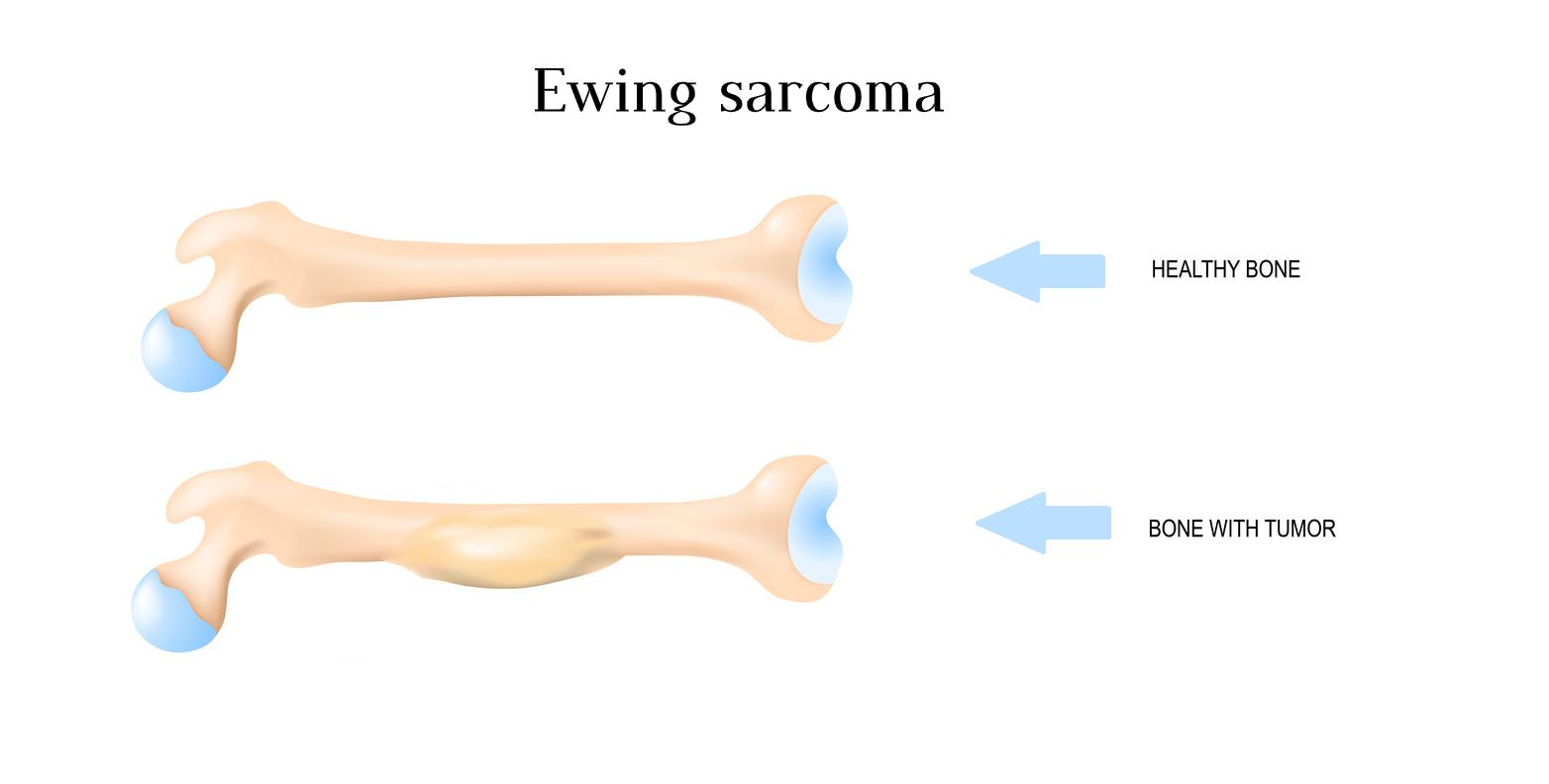 Ewing's Sarcoma